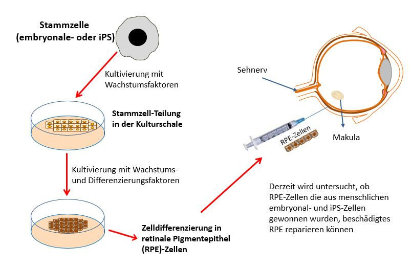 Diagram on developing eye therapies