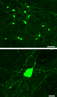 Induced neurons made by Dr Torper and colleagues with their 'direct neural conversion' method are shown in green. These cells took 12 weeks to form after the conversion was started. The bottom image shows a single induced neuron at 5 times greater magnification (zoomed in) than the cells shown in the top image. White bars represent a length of 50 microns (top) and 10 microns (bottom).