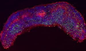 Zika virus (green)-infected human brain tissue show structural disorganization of the radial glial cells (red).