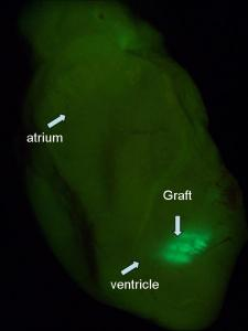 Mouse heart with a graft of cardiomyocytes grown from human embryonic stem cells