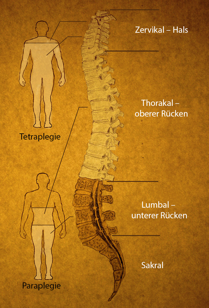 The spine has different sections. The level of paralysis depends on the location of the injury.