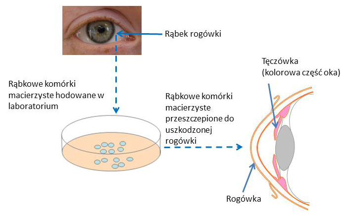 Diagram on repairing the cornea
