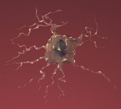 Drawing of a neuron affected by Alzheimer's disease