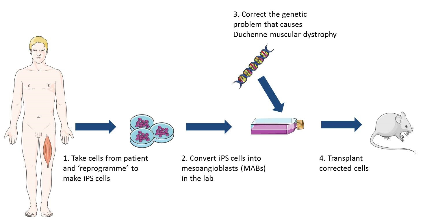 Diagram explaining reprogramming and cell therapies of Duchenne muscular dystrophy