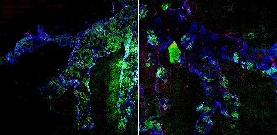 Fluorescence tagging of progenitor and stem cells before and after lung injury