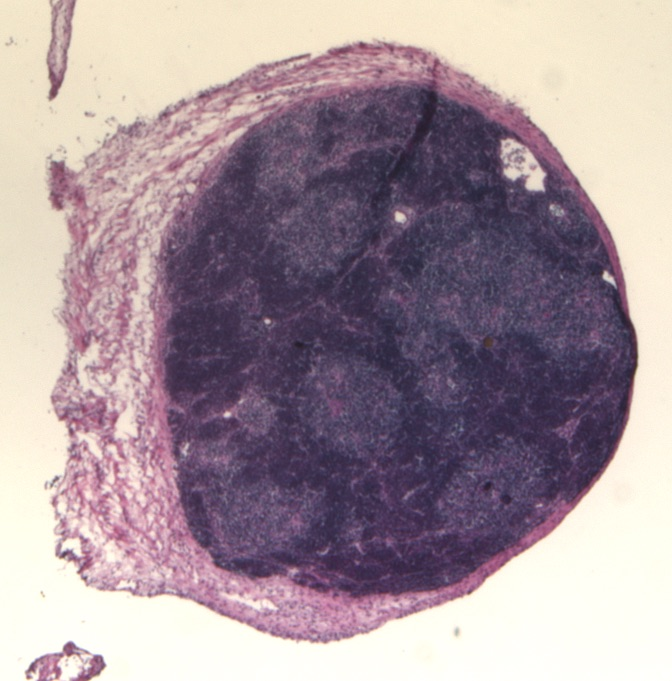 The image shows a thymus organoid, which is a small ball of cells capable of forming a thymus when transplanted. Thymus cells are stained purple.