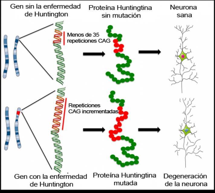 Enfermedad de Huntington: ¿cómo podrían ayudar las células