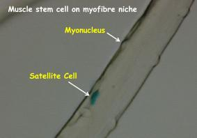 Satellite cell on muscle fibre