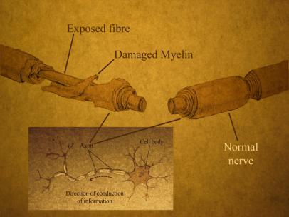 A spinal cord injury affects both neurons and the myelin sheath that insulates axons