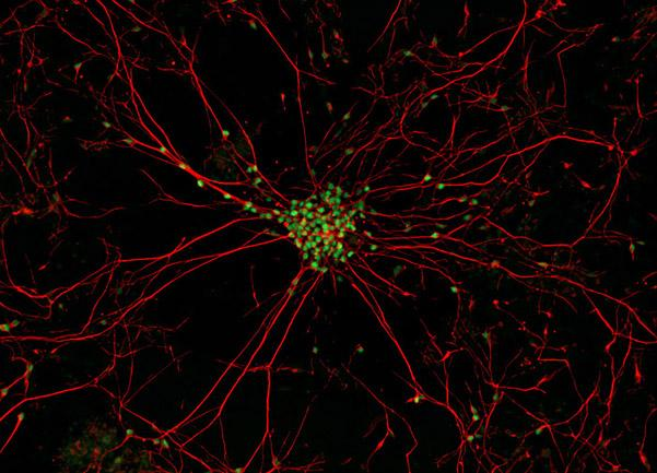 Motor neurons made from iPS cells