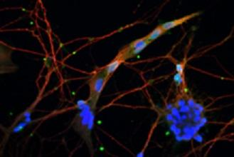 Neurons derived from equine stem cells