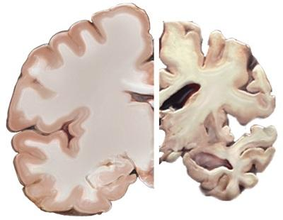 Healthy brain (left) compared to a brain affected by Alzheimer's disease (right).