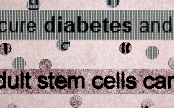 Diabetes and stem cells