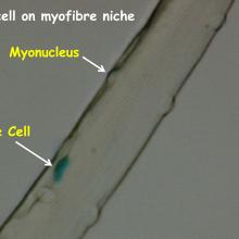 Satellite cell on muscle stem cell